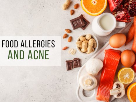 Food Allergies and acne