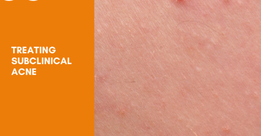 Treating Subclinical acne