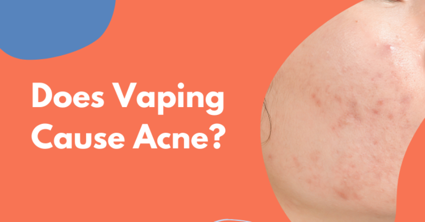 Does Vaping Cause Acne?