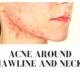 Acne around Jawline and Neck