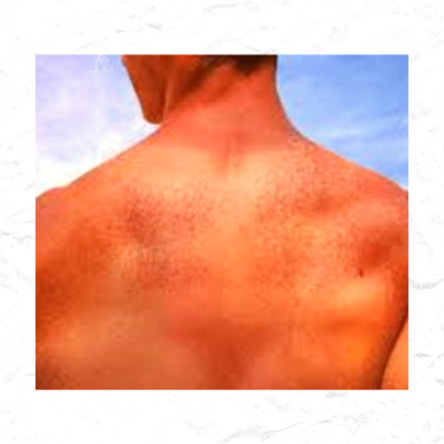 Negative Impact of Sun on Our Skin and Body