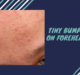 Tiny-Bumps-On-Forehead.