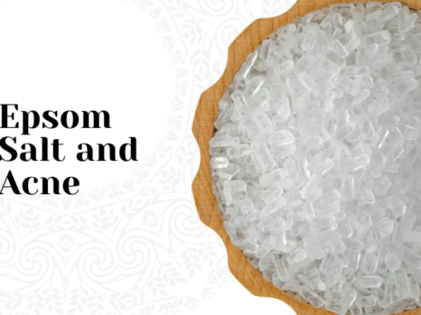 Epsom Salt and Acne